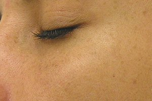 hyperpigmentation HydraFacial after