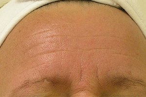 wrinkles HydraFacial after
