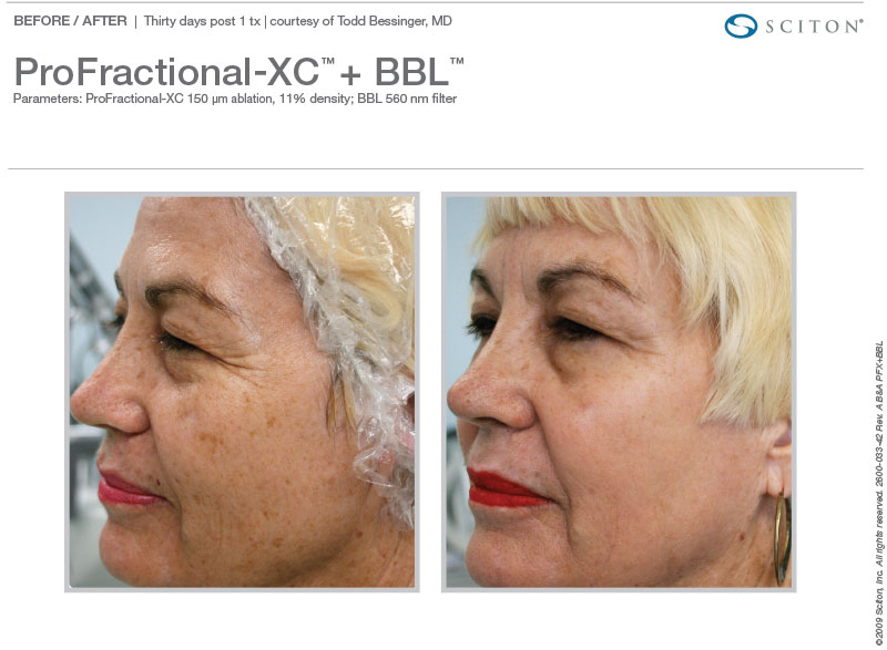 BBL and ProFractional-XC™ for brown spots and wrinkles