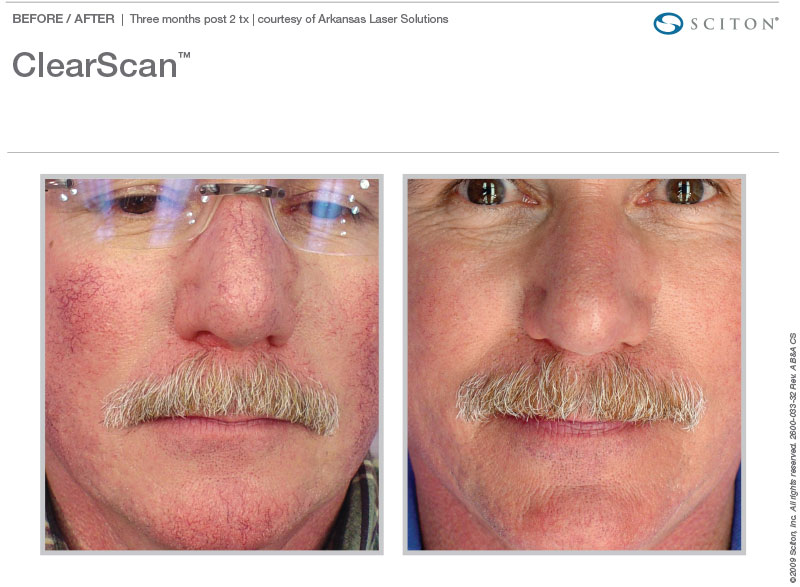 ClearScan for rosacea