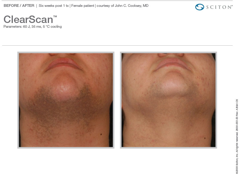 ClearScan hair reduction