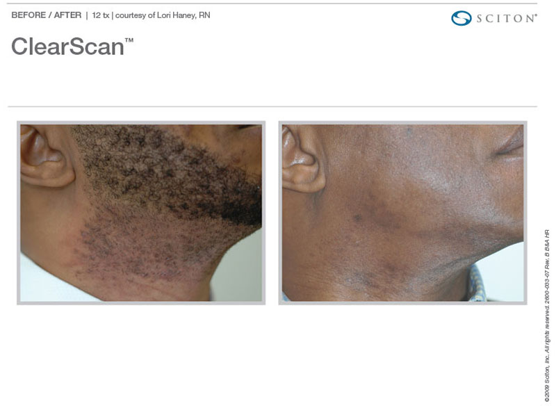 ClearScan dark skin hair reduction