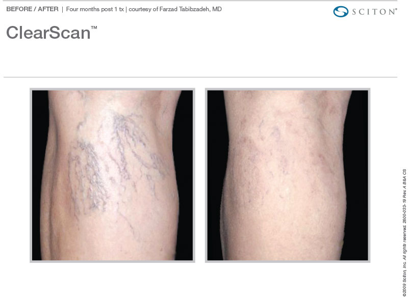 ClearScan for veins