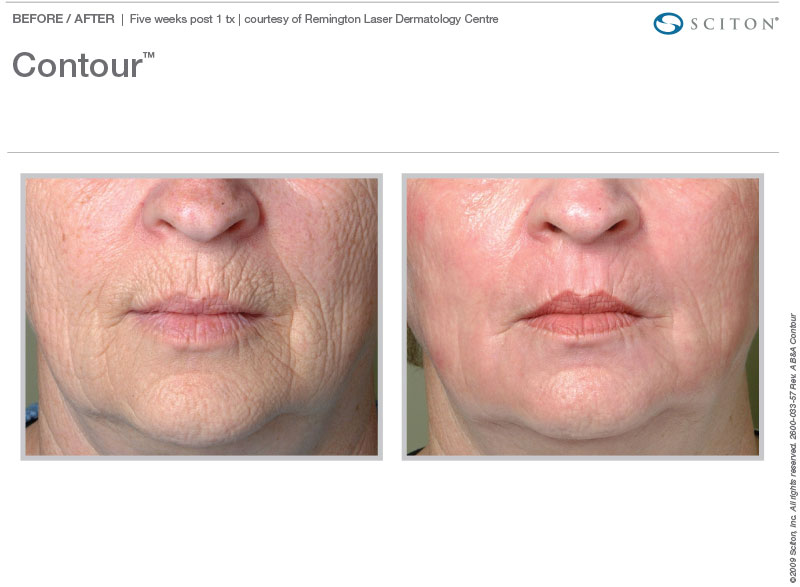 Contour TRL for wrinkles.