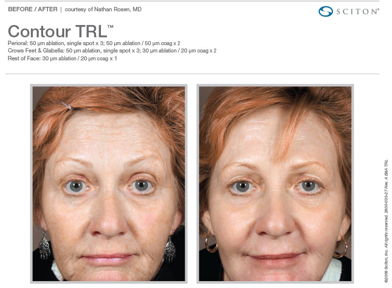 Contour TRL for crows' feet and wrinkles.