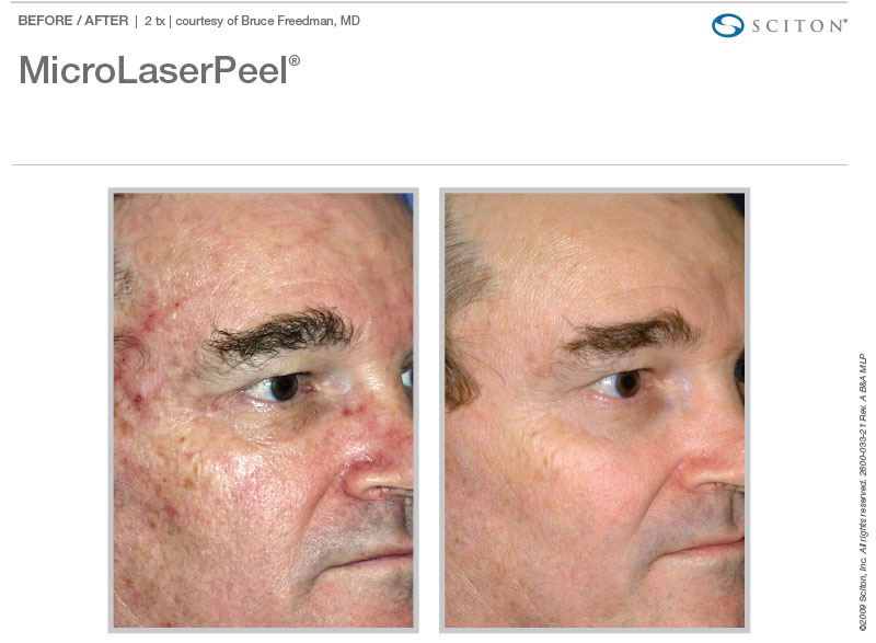 MicroLaserPeel for red and brown spots