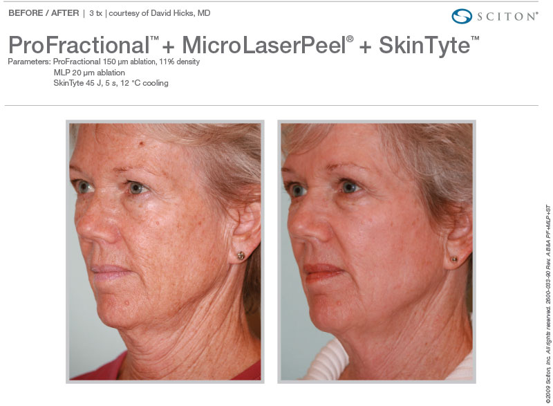 ProFractional™, MicroLaserPeel™, and SkinTyte