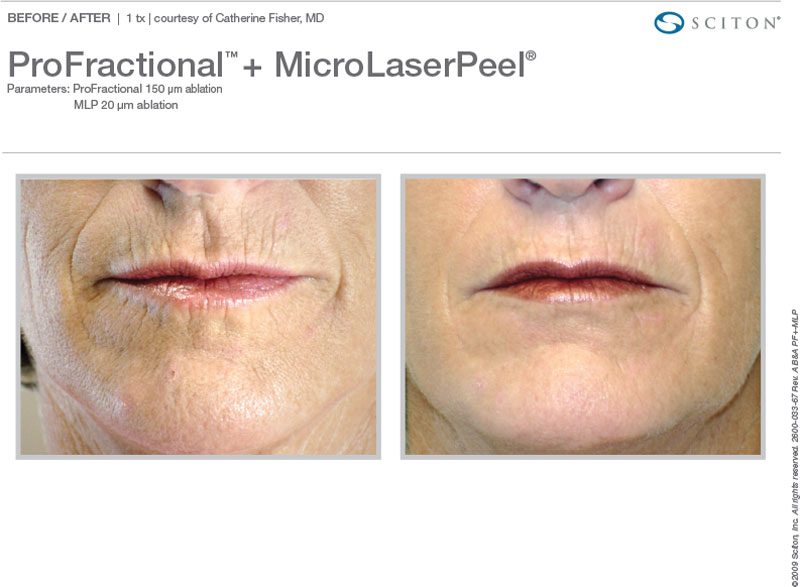 ProFractional and MicroLaserPeel™ for wrinkles